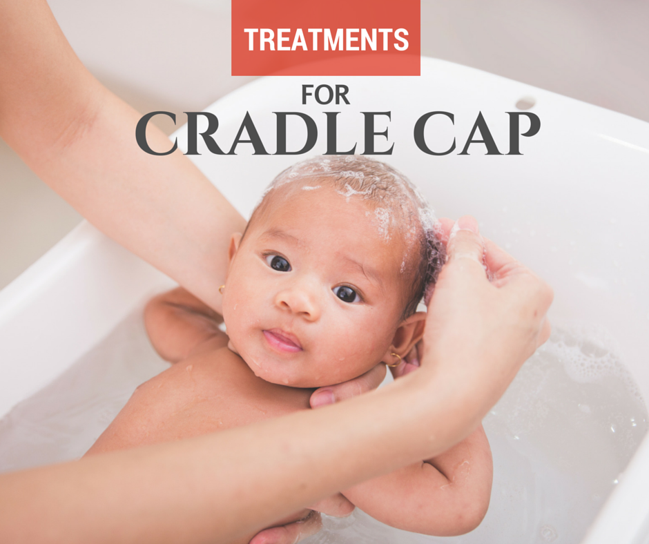 Treatments for cradle cap